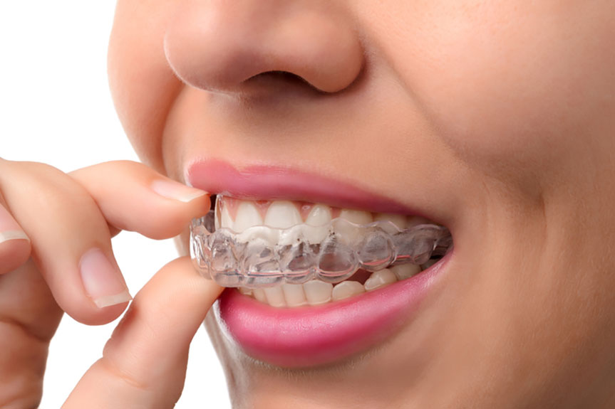 Reasons Why Using Invisalign Braces Is Necessary
